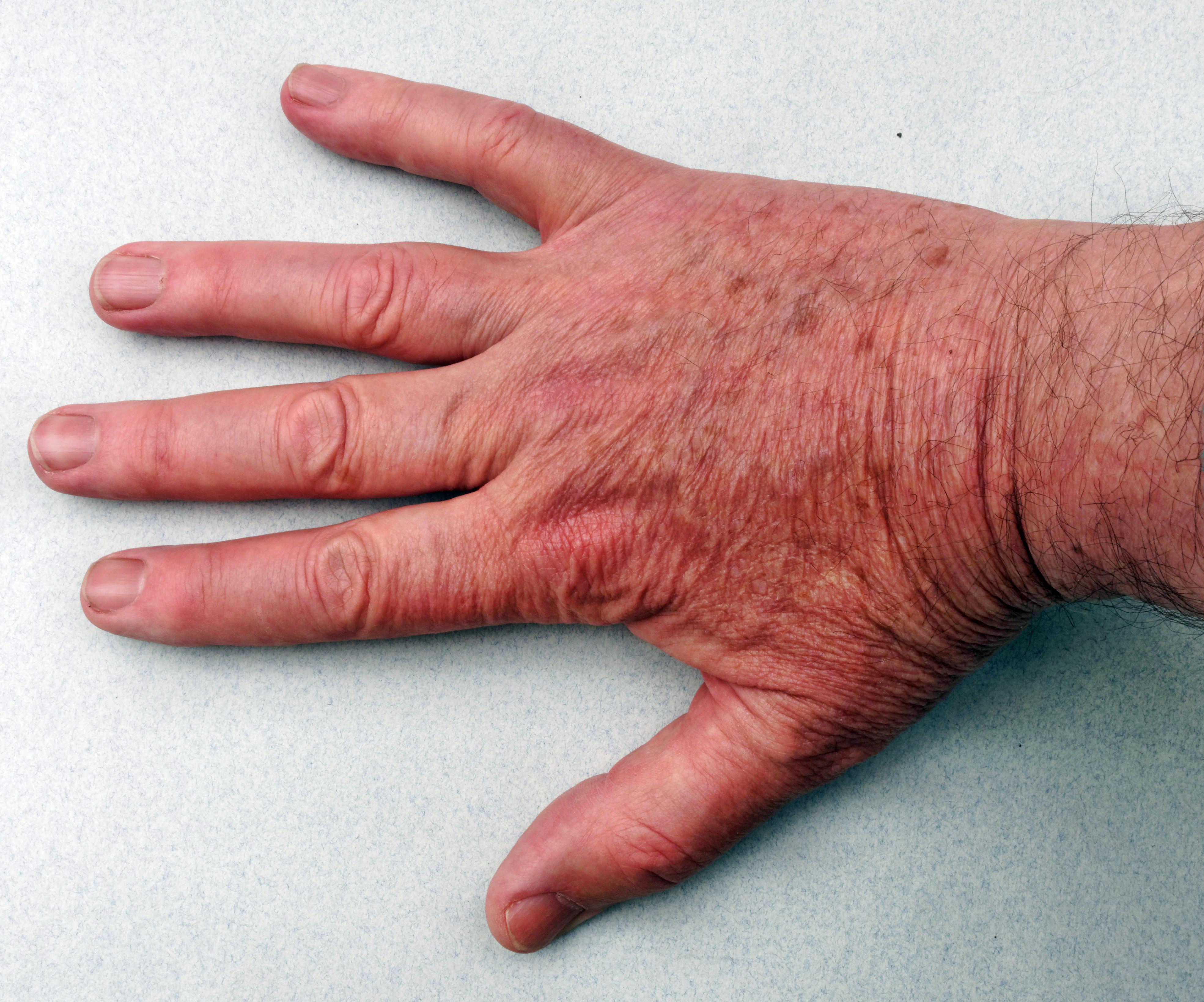 Hand-2.jpeg