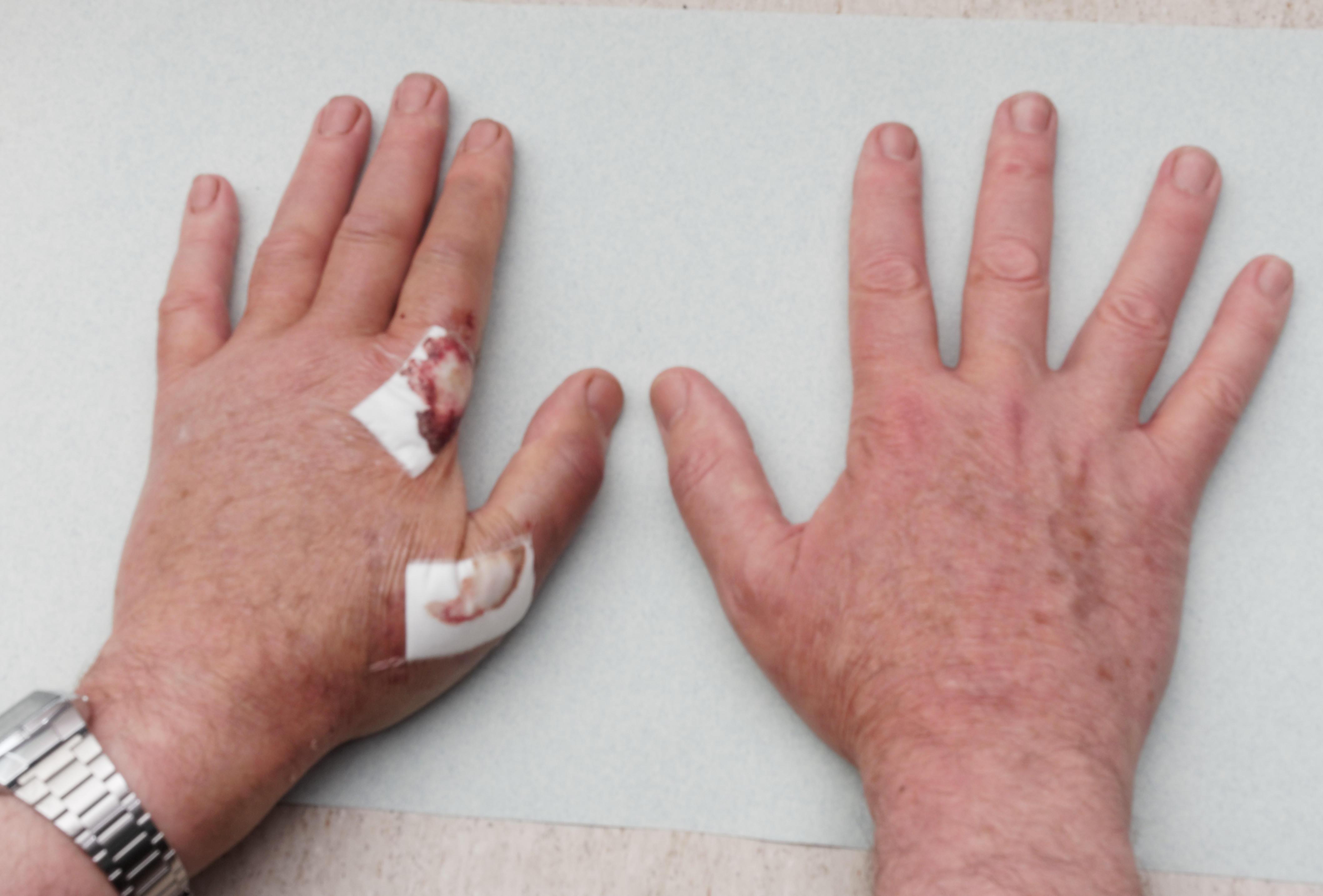 Hand-3.jpeg