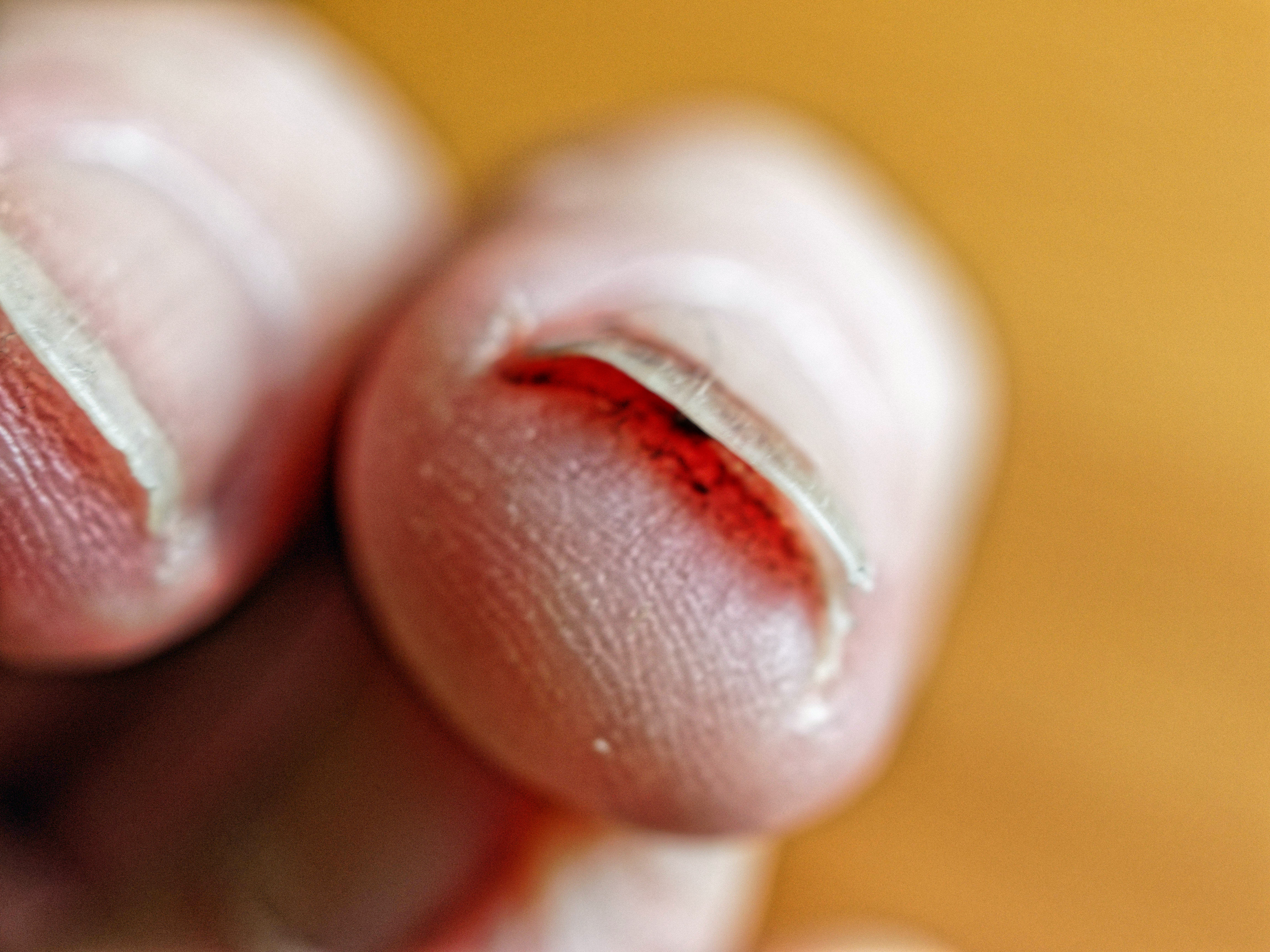 Fingernail-injury-6.jpeg