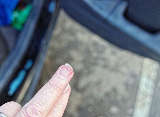 Fingernail-injury-1.jpeg