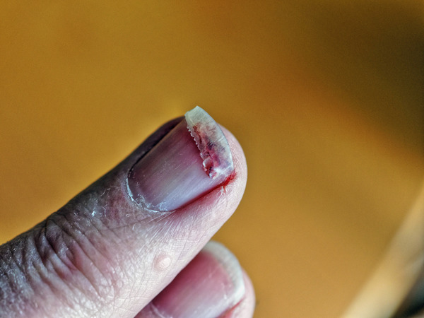 Fingernail-injury-2.jpeg