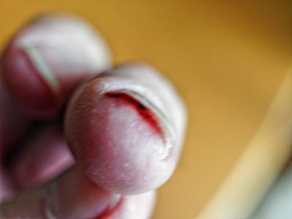 Fingernail-injury-3.jpeg