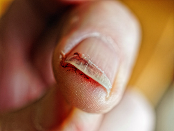 Fingernail-injury-4.jpeg