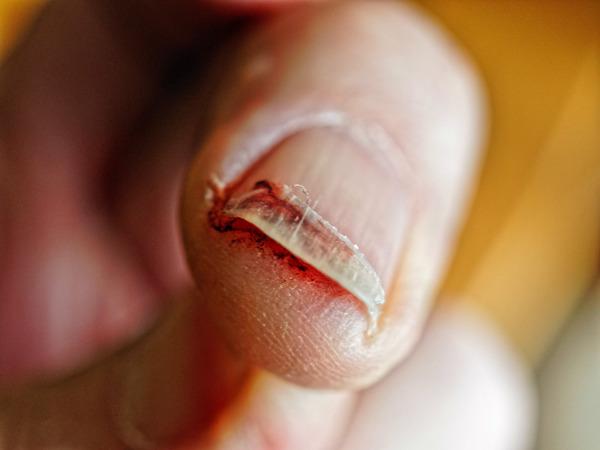 Fingernail-injury-4.jpeg