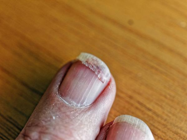 Fingernail-injury-5.jpeg