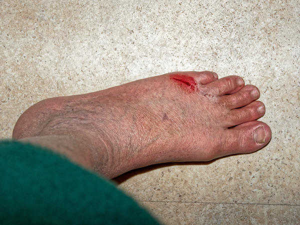 Injured-foot-1.jpeg