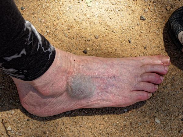 Yvonnes-foot-1.jpeg