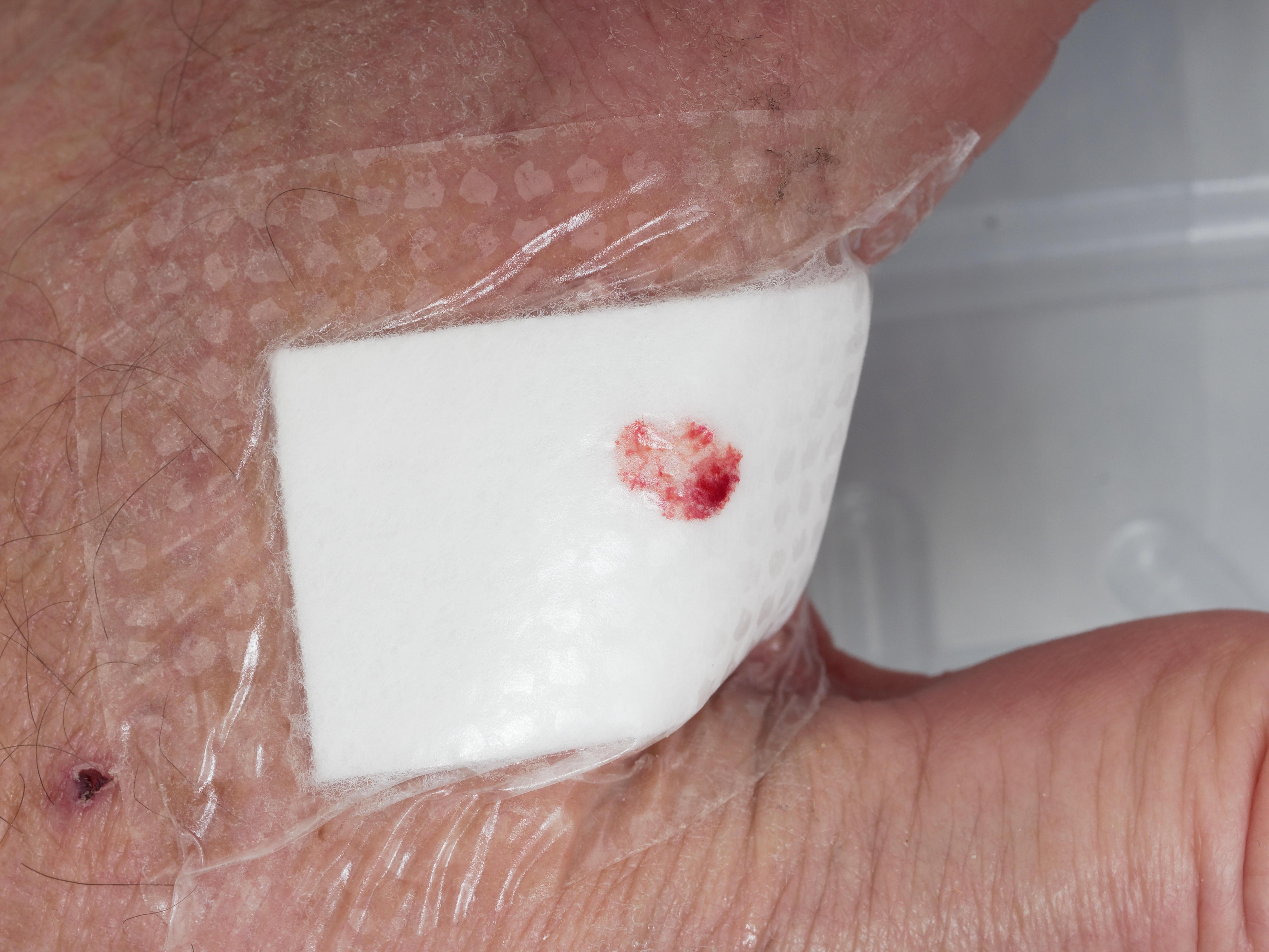 Hand-wound-5.jpeg