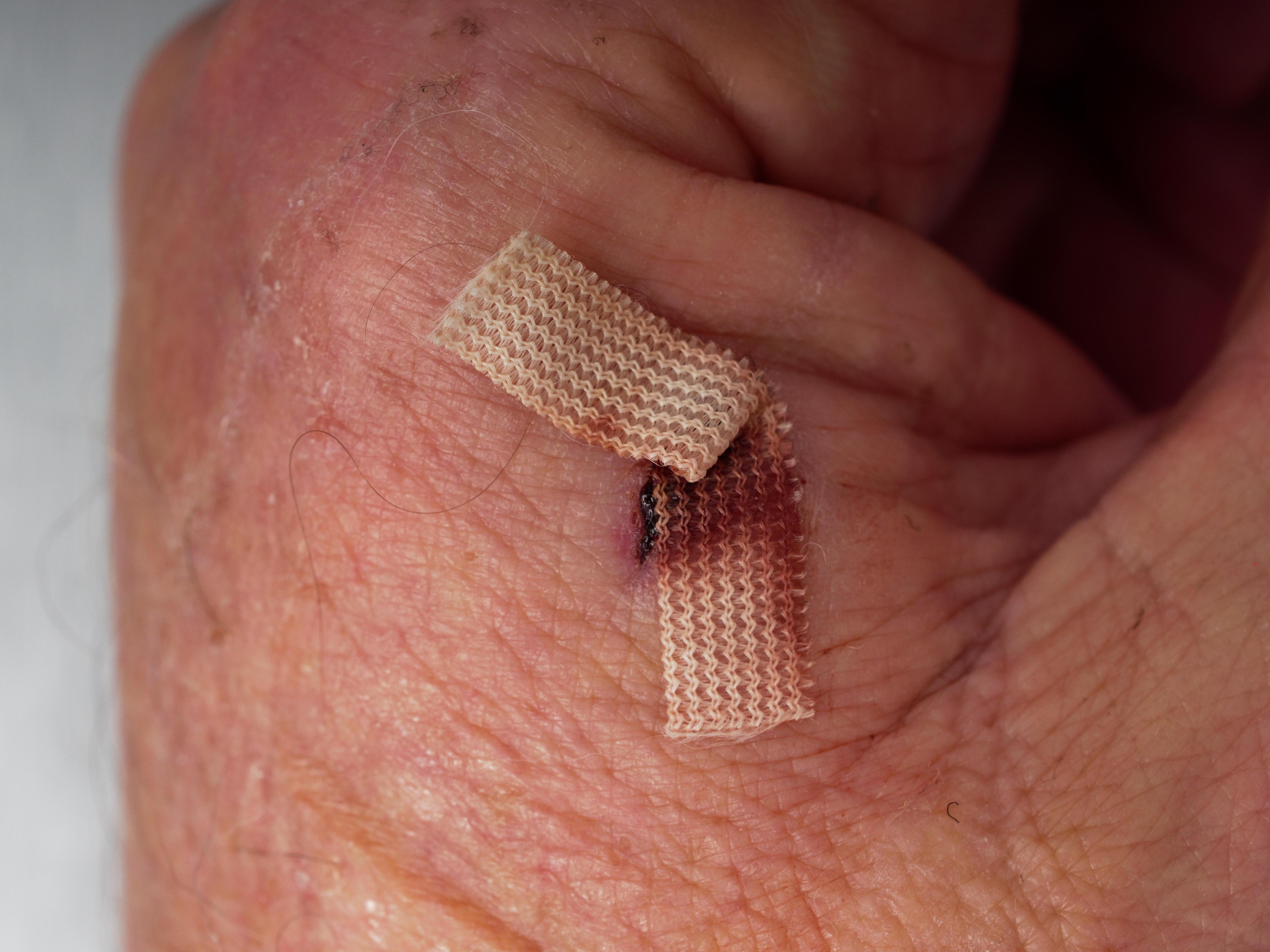 Hand-wound-3.jpeg