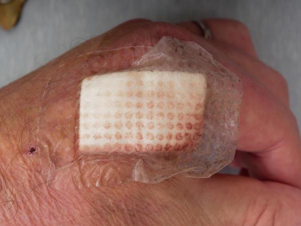 Hand-wound-1.jpeg