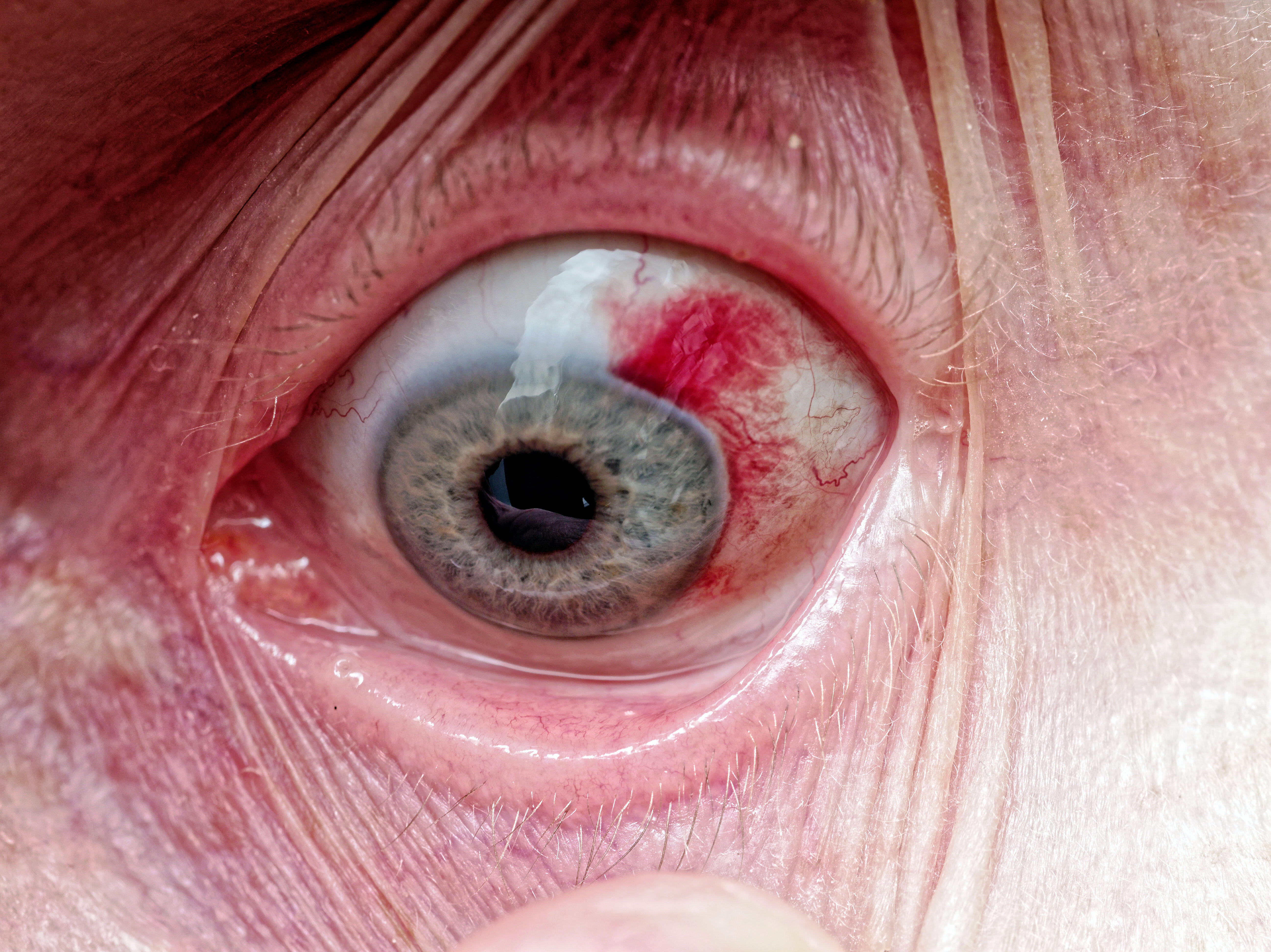 Yvonnes-eye-2.jpeg