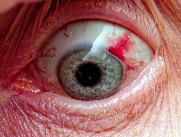 Yvonnes-eye.jpeg