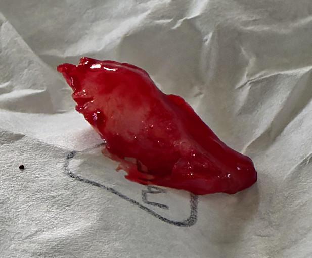 Leonid-biopsy-53.jpeg