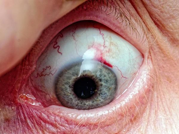 Yvonnes-eye-1.jpeg
